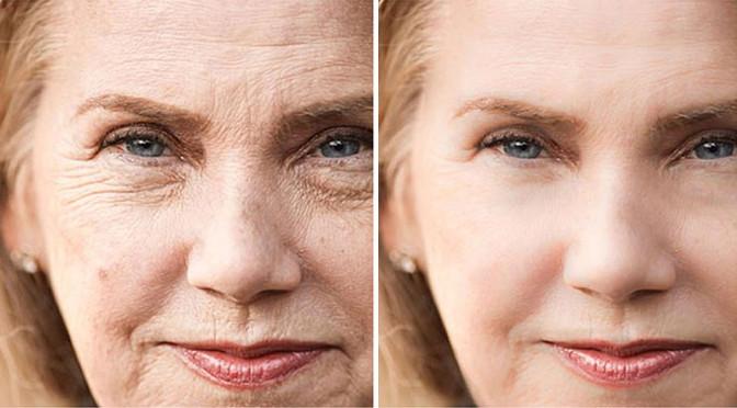 Borrar las arrugas del rostro