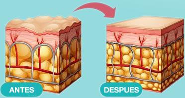 Mejoras de la piel con fitoceramidas